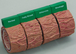 Artery Blockage Models Pharmaceutical and Anatomical Model Gifts