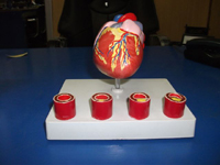 Heart With Arteries Pharmaceutical and Anatomical Model Gifts