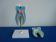 Tooth Model Pharmaceutical and Anatomical Model Gifts