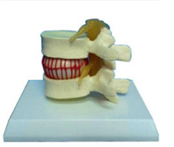 Vertebrae Model With Light Pharmaceutical and Anatomical Model Gifts