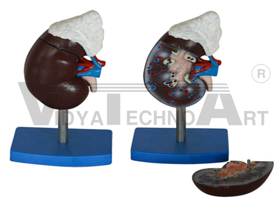 Human Kidney With Adrenal Gland Pharmaceutical and Anatomical Model Gifts