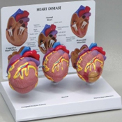 Mini Heart Set Models Pharmaceutical and Anatomical Model Gifts