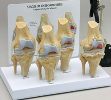 4 - Stage Osteoarthritis Knee Pharmaceutical and Anatomical Model Gifts