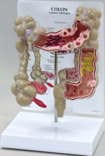 Colon With Pathology Pharmaceutical and Anatomical Model Gifts