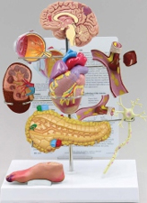 Type II Diabetes Pharmaceutical and Anatomical Model Gifts