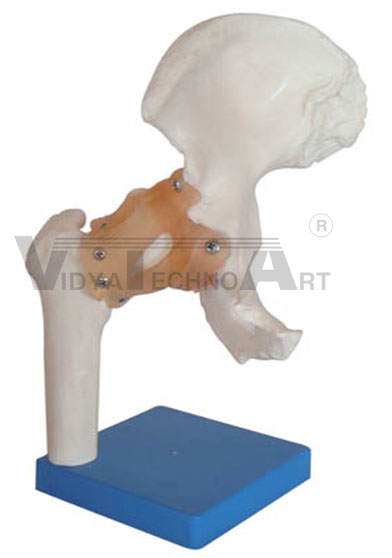 Life Size Hip Joint Pharmaceutical and Anatomical Model Gifts