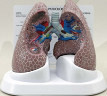 Diseased Lung Pharmaceutical and Anatomical Model Gifts