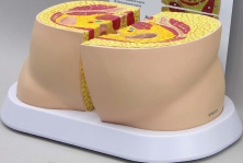 Obesity Model Pharmaceutical and Anatomical Model Gifts