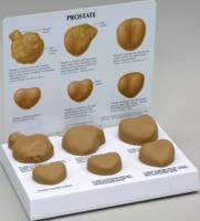 Prostate Pharmaceutical and Anatomical Model Gifts