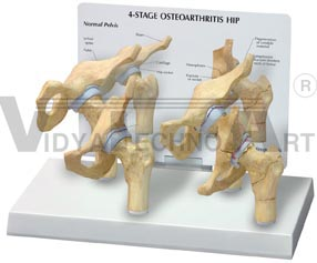 4-Stage Arthritic HipPharmaceutical and Anatomical Model Gifts