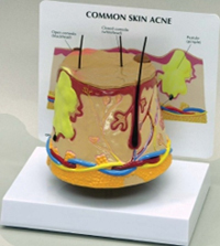 Skin Acne Pharmaceutical and Anatomical Model Gifts